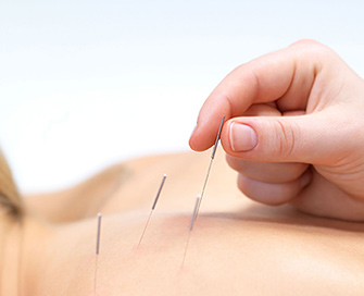 acupuncture-services-img